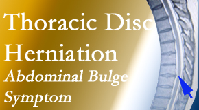 Dr. Hoang's Chiropractic Clinic cares for thoracic disc herniation that for some patients prompts abdominal pain.