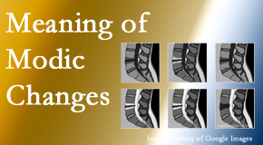 Dr. Hoang's Chiropractic Clinic sees many back pain and neck pain patients who bring their MRIs with them to the office. Modic changes are often seen.