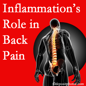 The role of inflammation in Montreal back pain is real. Chiropractic care can manage it.