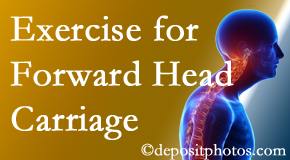 Montreal chiropractic treatment of forward head carriage is two-fold: manipulation and exercise.