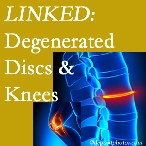 Degenerated discs and degenerated knees are not such strange bedfellows. They are seen to be related. Montreal patients with a loss of disc height due to disc degeneration often also have knee pain related to degeneration.